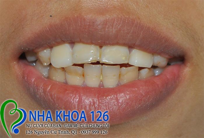 http://nhakhoa126.com/hinhanh/rang-su/nha-khoa-ba-lan-dieu-tri-rang-cua-ho-tuyet01.jpg