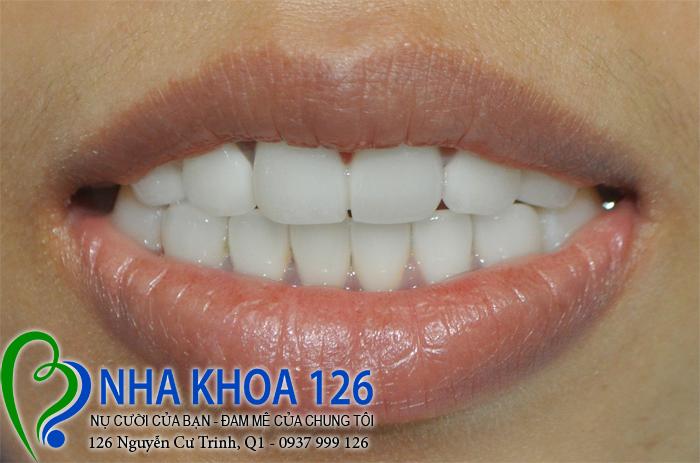 http://nhakhoa126.com/hinhanh/rang-su/nha-khoa-ba-lan-dieu-tri-rang-cua-ho-tuyet02.jpg