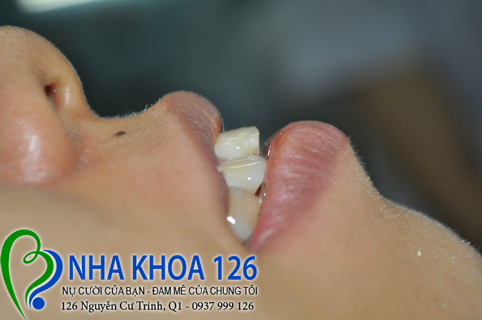 http://nhakhoa126.com/hinhanh/rang-su/nha-khoa-ba-lan-dieu-tri-rang-cua-ho-tuyet03.jpg