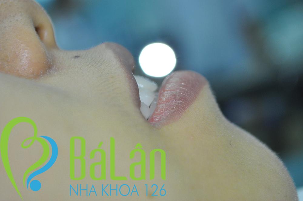 http://nhakhoa126.com/hinhanh/rang-su/nha-khoa-ba-lan-dieu-tri-rang-cua-ho-tuyet04.jpg