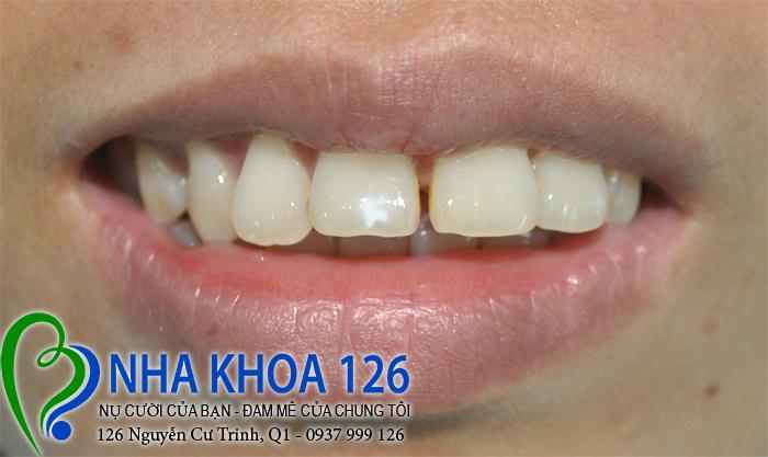 http://nhakhoa126.com/hinhanh/rang-su/nha-khoa-ba-lan-dieu-tri-rang-cua-ho-va-thua-tuyen01.jpg