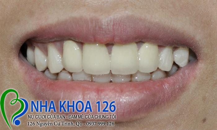 http://nhakhoa126.com/hinhanh/rang-su/nha-khoa-ba-lan-dieu-tri-rang-cua-ho-va-thua-tuyen02.jpg