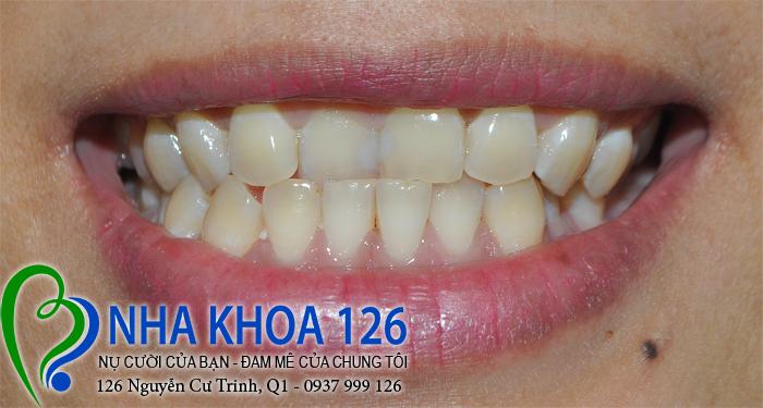 http://nhakhoa126.com/hinhanh/rang-su/nha-khoa-ba-lan-dieu-tri-rang-cua-lech-baokhuyen0.jpg
