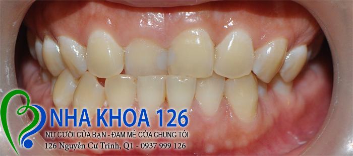http://nhakhoa126.com/hinhanh/rang-su/nha-khoa-ba-lan-dieu-tri-rang-cua-lech-baokhuyen02.jpg