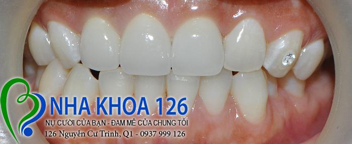 http://nhakhoa126.com/hinhanh/rang-su/nha-khoa-ba-lan-dieu-tri-rang-cua-lech-baokhuyen03.jpg