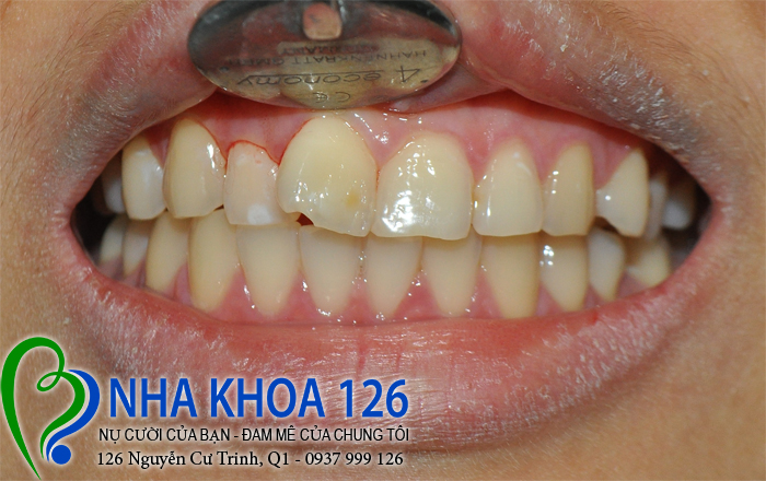 http://nhakhoa126.com/hinhanh/rang-su/nha-khoa-ba-lan-dieu-tri-rang-cua-lech-beHongAnh01.jpg