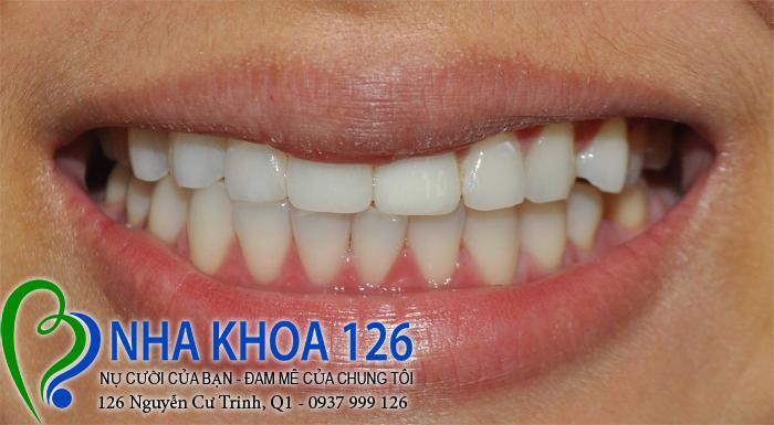 http://nhakhoa126.com/hinhanh/rang-su/nha-khoa-ba-lan-dieu-tri-rang-cua-lech-beHongAnh02.jpg