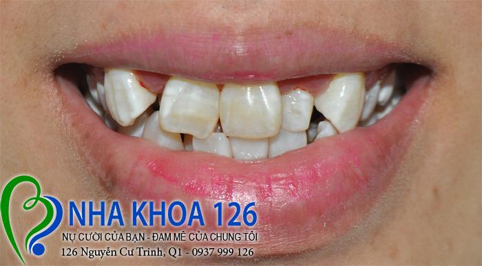 http://nhakhoa126.com/hinhanh/rang-su/nha-khoa-ba-lan-dieu-tri-rang-cua-moc-lech-HongNhi01.jpg