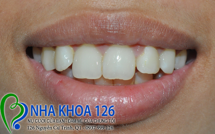 http://nhakhoa126.com/hinhanh/rang-su/nha-khoa-ba-lan-dieu-tri-rang-cua-to-ngan0.jpg