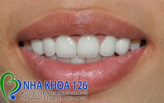 http://nhakhoa126.com/hinhanh/rang-su/nha-khoa-ba-lan-dieu-tri-rang-cua-to-ngan01.jpg