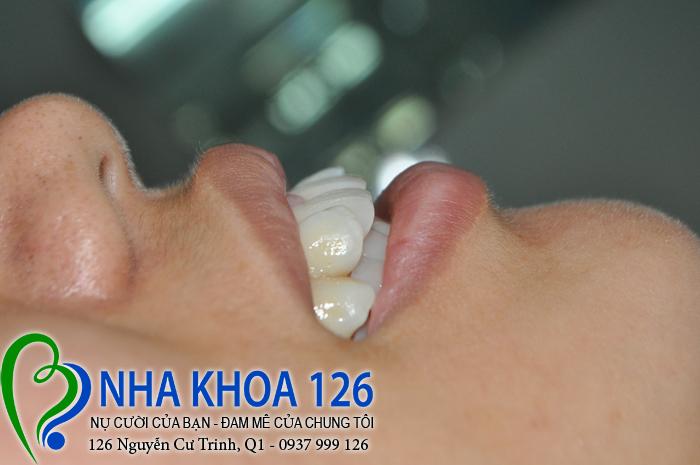 http://nhakhoa126.com/hinhanh/rang-su/nha-khoa-ba-lan-dieu-tri-rang-cua-to-ngan03.jpg