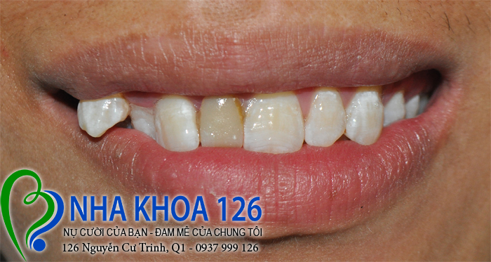 http://nhakhoa126.com/hinhanh/rang-su/nha-khoa-ba-lan-dieu-tri-rang-du-linhnhagian01.jpg