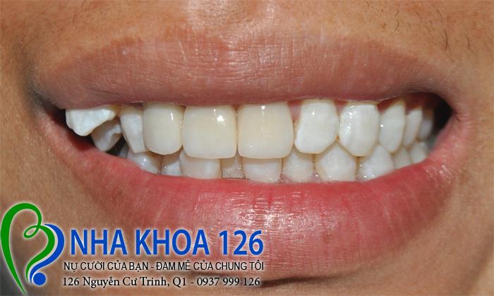 http://nhakhoa126.com/hinhanh/rang-su/nha-khoa-ba-lan-dieu-tri-rang-du-linhnhagian02.jpg