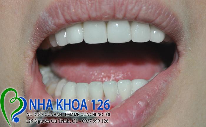 http://nhakhoa126.com/hinhanh/rang-su/nha-khoa-ba-lan-dieu-tri-rang-ham-duoi-dao01.jpg