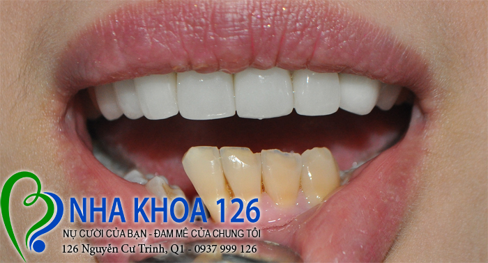 http://nhakhoa126.com/hinhanh/rang-su/nha-khoa-ba-lan-dieu-tri-rang-ham-duoi-dao02.jpg