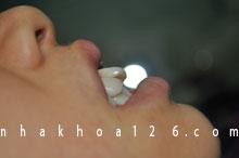 http://nhakhoa126.com/hinhanh/rang-su/nha-khoa-ba-lan-dieu-tri-rang-ho-01.jpg