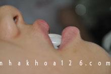 http://nhakhoa126.com/hinhanh/rang-su/nha-khoa-ba-lan-dieu-tri-rang-ho-02.jpg