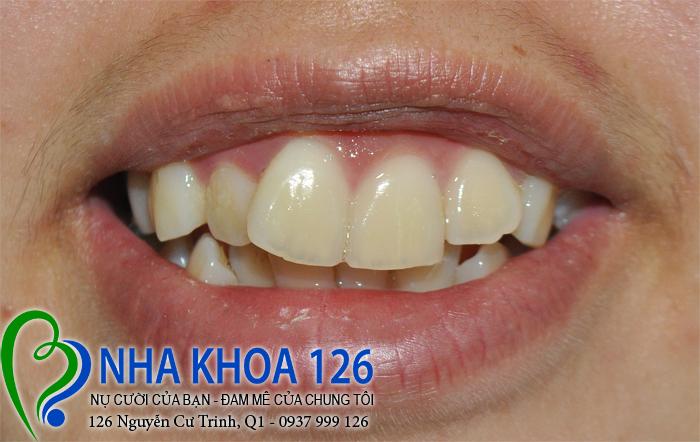 http://nhakhoa126.com/hinhanh/rang-su/nha-khoa-ba-lan-lam-rang-su-chinh-rang-cua-bi-lech-KieuRiu01.jpg