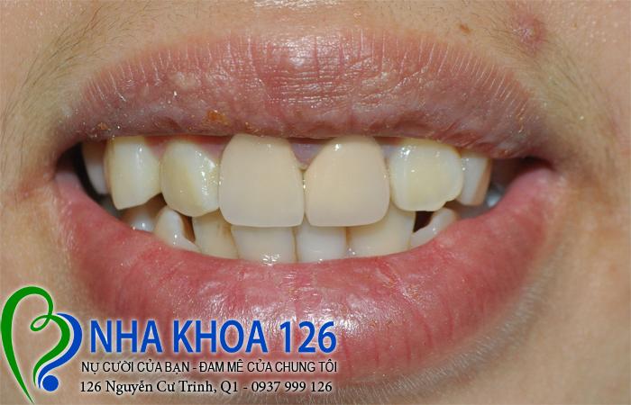 http://nhakhoa126.com/hinhanh/rang-su/nha-khoa-ba-lan-lam-rang-su-chinh-rang-cua-bi-lech-KieuRiu02.jpg