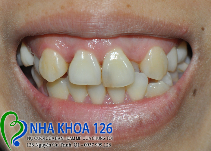 http://nhakhoa126.com/hinhanh/rang-su/nha-khoa-ba-lan-lam-rang-su-de-chua-rang-cua-xo-lech-NguyenThiDuoc01.jpg
