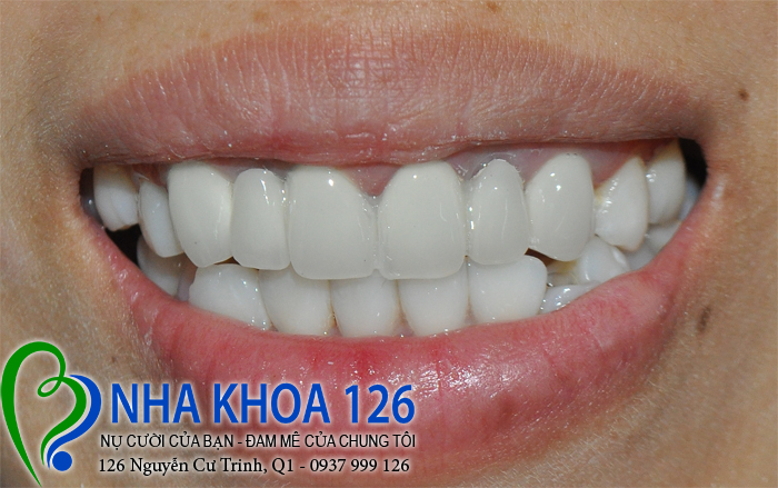 http://nhakhoa126.com/hinhanh/rang-su/nha-khoa-ba-lan-lam-rang-su-de-chua-rang-cua-xo-lech-NguyenThiDuoc02.jpg