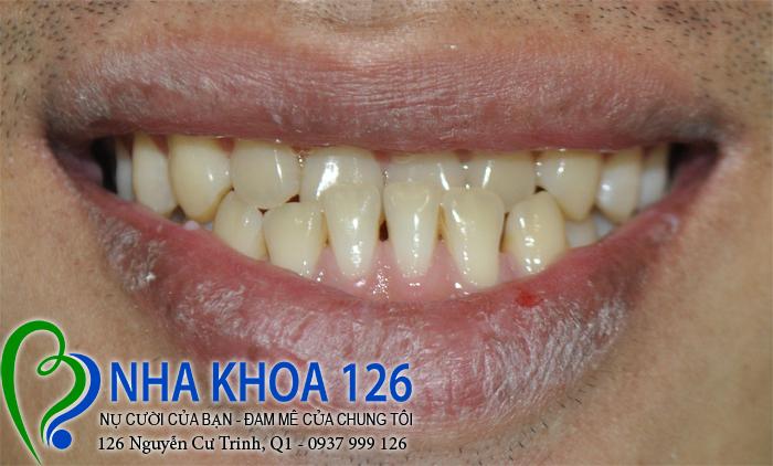 http://nhakhoa126.com/hinhanh/rang-su/nha-khoa-ba-lan-lam-rang-su-dieu-tri-khop-can-nguoc-Tao01.jpg