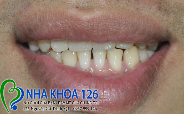 http://nhakhoa126.com/hinhanh/rang-su/nha-khoa-ba-lan-lam-rang-su-dieu-tri-khop-can-nguoc-Tao02.jpg