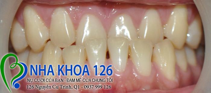 http://nhakhoa126.com/hinhanh/rang-su/nha-khoa-ba-lan-lam-rang-su-dieu-tri-khop-can-nguoc-Tao03.jpg