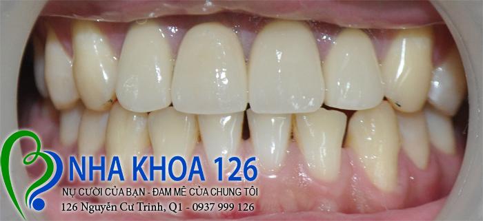 http://nhakhoa126.com/hinhanh/rang-su/nha-khoa-ba-lan-lam-rang-su-dieu-tri-khop-can-nguoc-Tao04.jpg