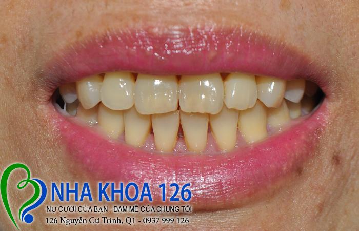 http://nhakhoa126.com/hinhanh/rang-su/nha-khoa-ba-lan-lam-rang-su-tham-my-toan-ham-chiHanh01.jpg