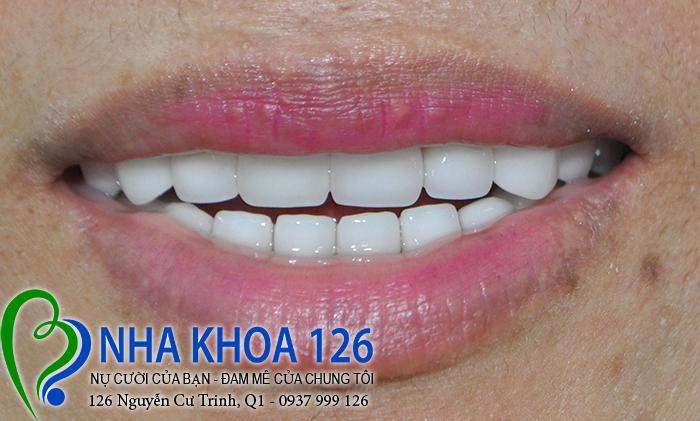 http://nhakhoa126.com/hinhanh/rang-su/nha-khoa-ba-lan-lam-rang-su-tham-my-toan-ham-chiHanh02.jpg
