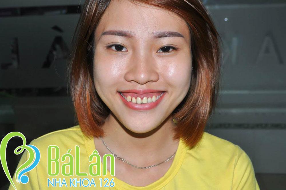 http://nhakhoa126.com/hinhanh/rang-su/nha-khoa-ba-lan-mai-vien-xuong-o-rang-chua-cuoi-ho-loi-thu03.jpg