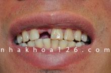 http://nhakhoa126.com/hinhanh/rang-su/nha-khoa-benh-nhan-126-mat-rang-cua-liem-01.jpg