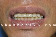http://nhakhoa126.com/hinhanh/rang-su/nha-khoa-benh-nhan-126-mat-rang-cua-liem-02.jpg