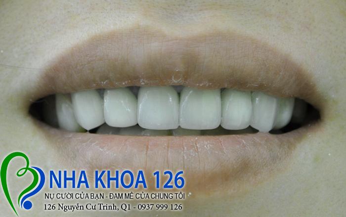 http://nhakhoa126.com/hinhanh/rang-su/nha-khoa-benh-nhan-dieu-tri-rang-su-tham-my-chi-dung-02.jpg