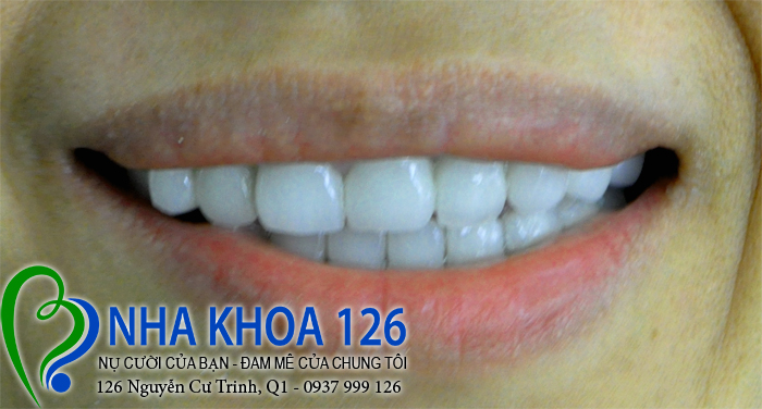 http://nhakhoa126.com/hinhanh/rang-su/nha-khoa-benh-nhan-dieu-tri-rang-su-tham-my-chi-tuyet-hoa-02.jpg