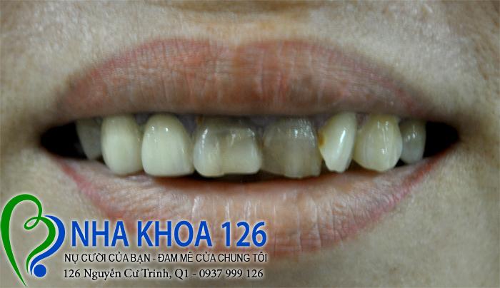 http://nhakhoa126.com/hinhanh/rang-su/nha-khoa-benh-nhan-lam-rang-su-chi-thap-nuong01.jpg