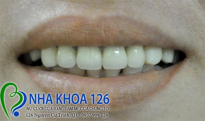 http://nhakhoa126.com/hinhanh/rang-su/nha-khoa-benh-nhan-lam-rang-su-chi-thap-nuong02.jpg