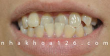 http://nhakhoa126.com/hinhanh/rang-su/nha-khoa-khop-can-nguoc-01.jpg