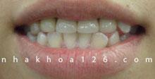 http://nhakhoa126.com/hinhanh/rang-su/nha-khoa-khop-can-nguoc-02.jpg