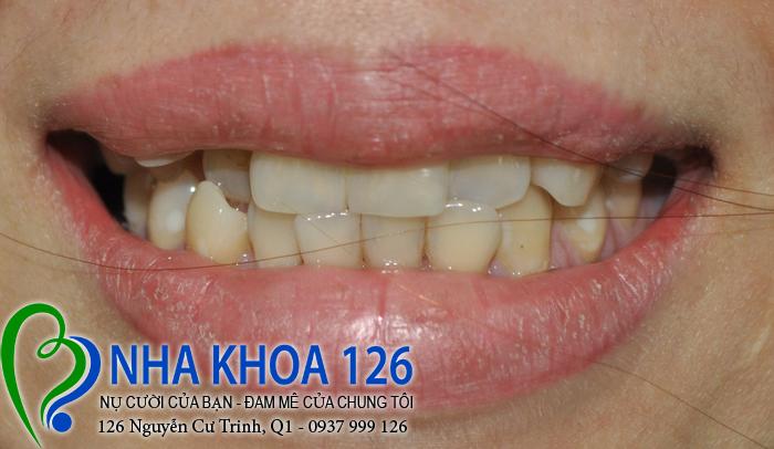 http://nhakhoa126.com/hinhanh/rang-su/nha-khoa-phuc-hinh-rang-su-ngocvy01.jpg