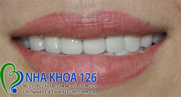 http://nhakhoa126.com/hinhanh/rang-su/nha-khoa-phuc-hinh-rang-su-ngocvy02.jpg