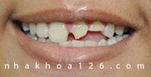http://nhakhoa126.com/hinhanh/rang-su/nha-khoa-rang-bi-be-duoc-phuc-hoi-01.jpg