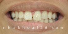 http://nhakhoa126.com/hinhanh/rang-su/nha-khoa-rang-bi-be-duoc-phuc-hoi.jpg