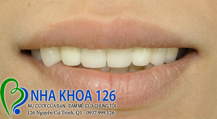 http://nhakhoa126.com/hinhanh/rang-su/nha-khoa-rang-su-kim-dung02.jpg