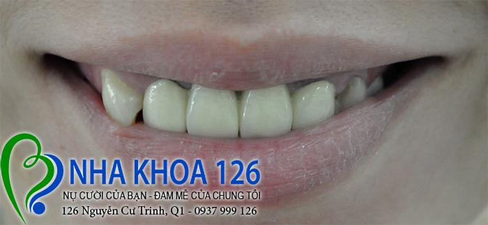http://nhakhoa126.com/hinhanh/rang-su/nha-khoa-rang-su-kim-dung03.jpg