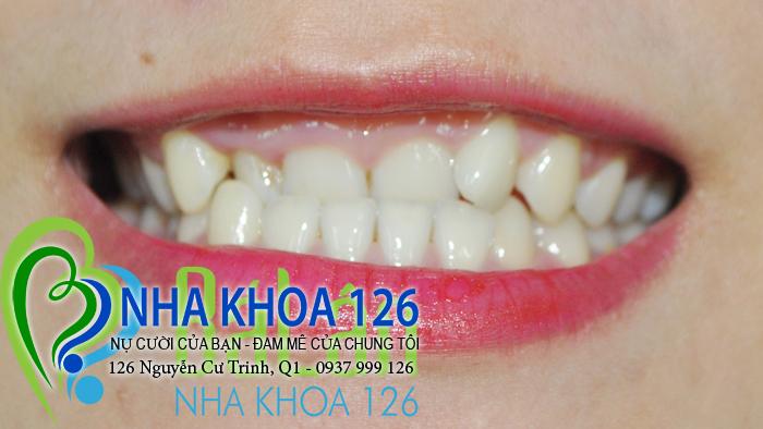 http://nhakhoa126.com/hinhanh/rang-su/nhakhoa126-bi-mom-lam-rang-su-cuc01.jpg