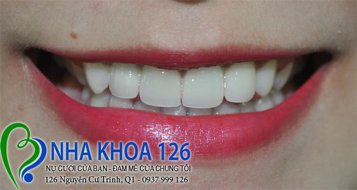 http://nhakhoa126.com/hinhanh/rang-su/nhakhoa126-bi-mom-lam-rang-su-cuc02.jpg
