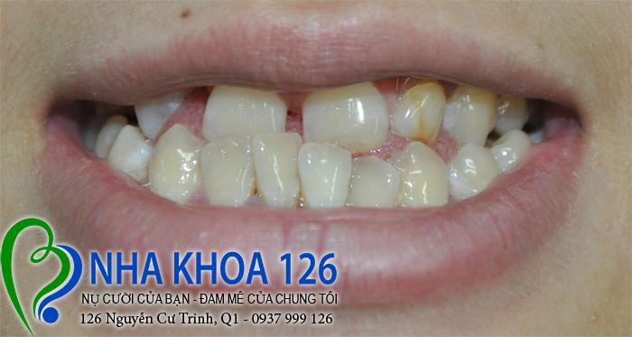 http://nhakhoa126.com/hinhanh/rang-su/nhakhoa126-bi-mom-lam-rang-su-huong01.jpg
