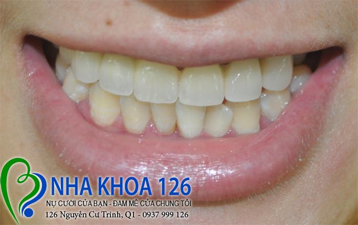 http://nhakhoa126.com/hinhanh/rang-su/nhakhoa126-bi-mom-lam-rang-su-huong02.jpg